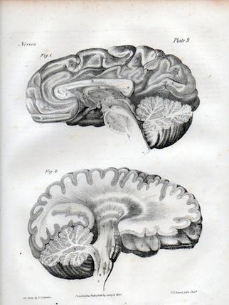 brainlith1-320x430