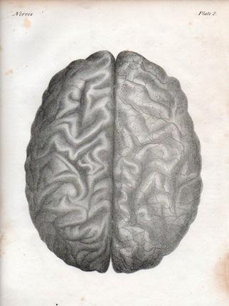 brainlith2-322x430