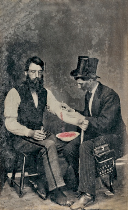 One of the only photos of the ancient practice of bloodletting.