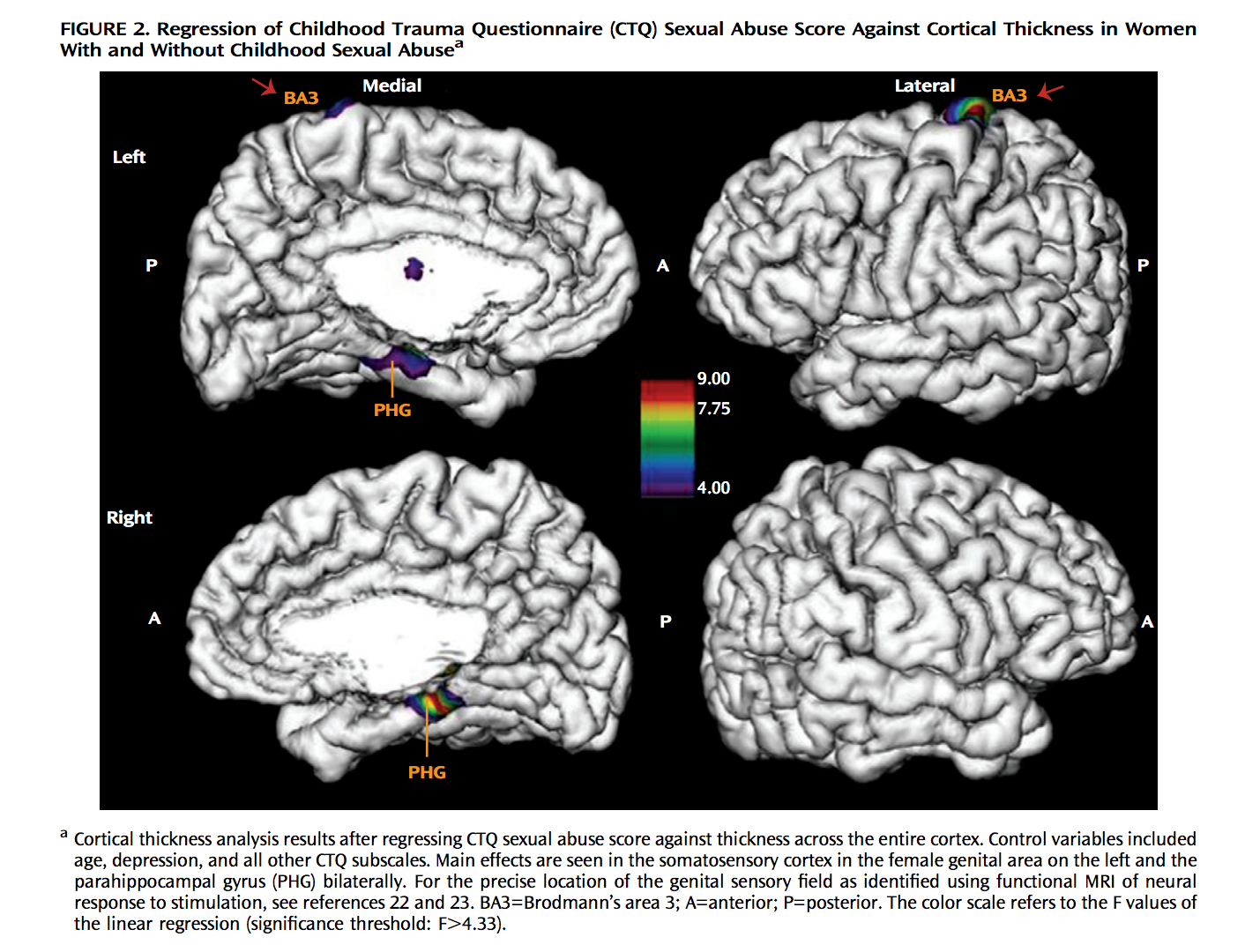the effects on child sexual abuse and neglect on the developing brain. Abused and neglected children have poorly integrated cerebral hemispheres this poor integration of hemispheres and underdevelopment of the orbitofrontal cortex is the when development in this area of the brain is hindered because of the toxic effects of stress hormones on the developing brain.
